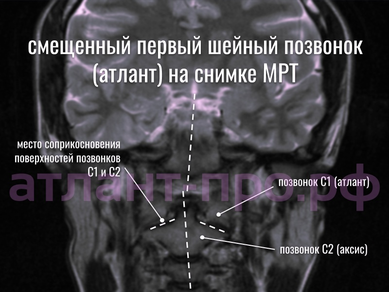 Подвывих позвонка атланта на снимке МРТ