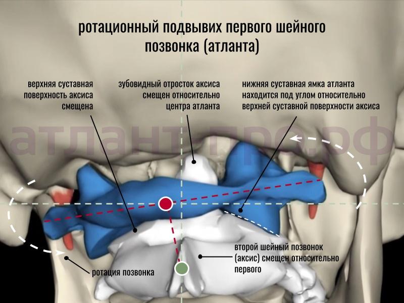 Ротационный подвывих атланта (вид со спины)